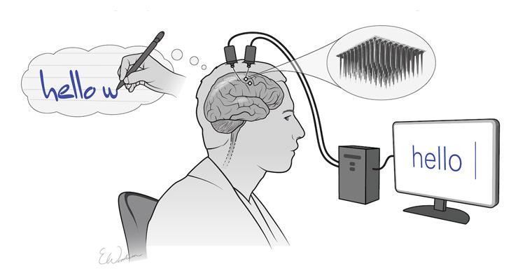 Un dispositivo cerebral y la IA convierten los pensamientos de escribir en texto